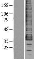NBL1-08887 - CCR1 Lysate
