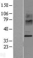 NBL1-08889 - CCR2 Lysate