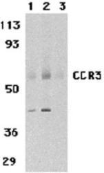 NBP1-76479 - CD193 / CCR3