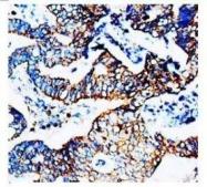 NBP1-41434 - CD195 / CCR5