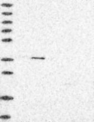 NBP1-91214 - CCRK / CDCH