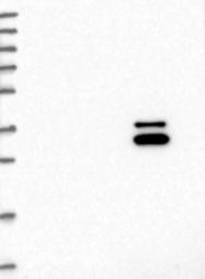 NBP1-85588 - CCRL2 / CCR11