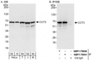 NBP1-79040 - CCT3 / TCP1 gamma