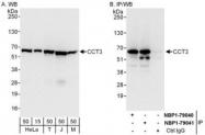 NBP1-79041 - CCT3 / TCP1 gamma
