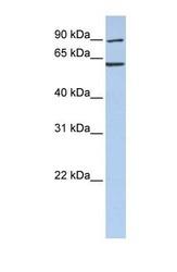 NBP1-56769 - CCT5 / TCP1 epsilon
