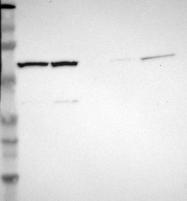 NBP1-83042 - CCT5 / TCP1 epsilon