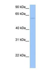 NBP1-56939 - CCT6B / TCP1 zeta-2