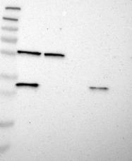 NBP1-91212 - CD105 / Endoglin