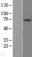 NBL1-10266 - CD105 Lysate