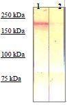 NBP1-74680 - CD136 / MST1R