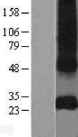 NBL1-08907 - CD151 Lysate