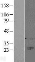 NBL1-08908 - CD160 Lysate