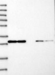 NBP1-88130 - CD161 / KLRB1