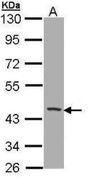 NBP1-33254 - CD1b
