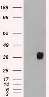 NBP1-47690 - CD2