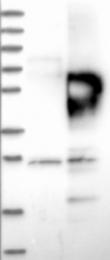 NBP1-87005 - CD2