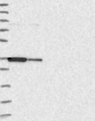 NBP1-87738 - CD200