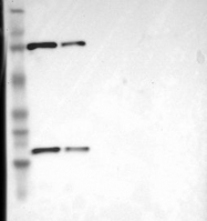 NBP1-90626 - CD2-associated protein