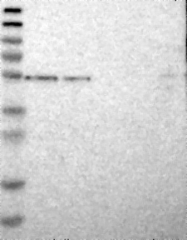 NBP1-90071 - CD39 / ENTPD1