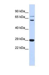 NBP1-59186 - CD154 / CD40L