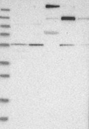 NBP1-84579 - CD41 / ITGA2B