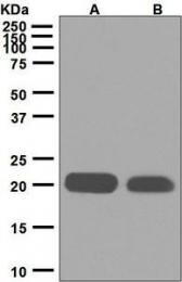 NBP1-95215 - CD42a / GPIX