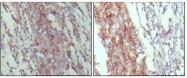 NBP1-47428 - CD45 / LCA