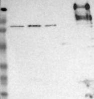 NBP1-88103 - CD45 / LCA