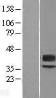 NBL1-07881 - B3GAT1 Lysate