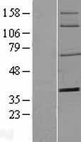 NBL1-13827 - CD73 Lysate