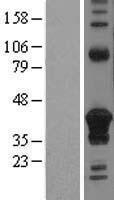NBL1-08968 - CD74 Lysate