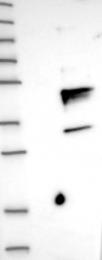 NBP1-83117 - CD79a