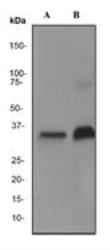 NBP1-42051 - CD8