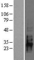 NBL1-08975 - CD83 Lysate