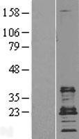 NBL1-08982 - CD9 Lysate