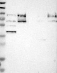 NBP1-86935 - CD97