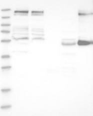 NBP1-81440 - CDC42BPB