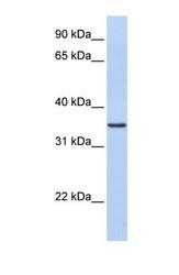 NBP1-53150 - CDC42EP4