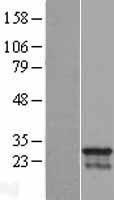 NBL1-09017 - CDCA4 Lysate