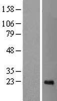NBL1-09018 - CDCA4 Lysate