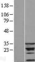 NBL1-09019 - CDCA5 Lysate