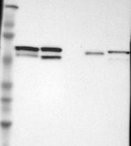 NBP1-82224 - CDCA7 / JPO1