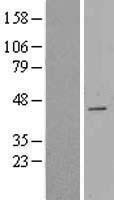 NBL1-09020 - CDCA7 Lysate
