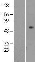 NBL1-09021 - CDCA7L Lysate