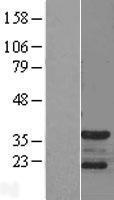 NBL1-09041 - CDK5R1 Lysate