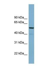 NBP1-58246 - CDK5RAP1