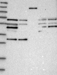 NBP1-86778 - CDK5RAP3