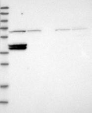 NBP1-86779 - CDK5RAP3