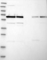 NBP1-86780 - CDK5RAP3