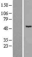 NBL1-09048 - CDKL2 Lysate